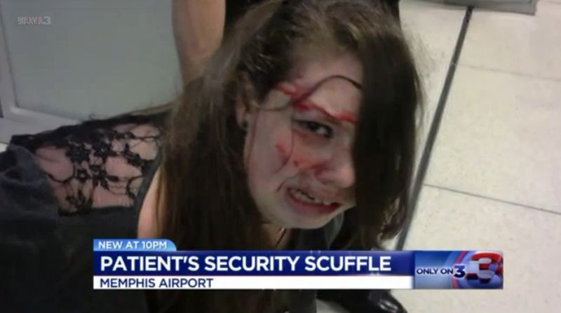 Disabled Patient Sues Airport and TSA After Bloody Altercation