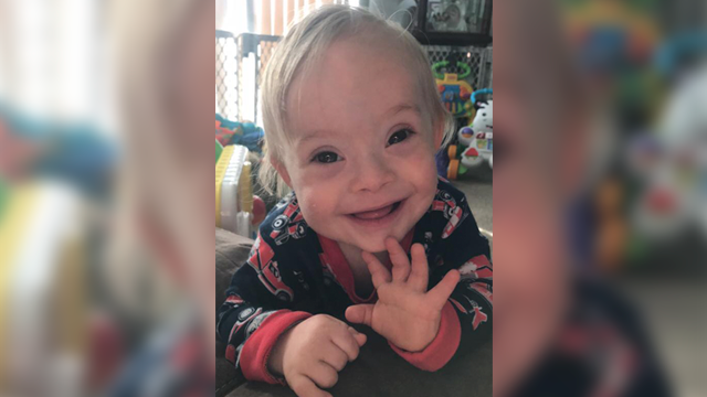 Gerber Baby Inspires Down Syndrome Abortion Bans Across The U.S.