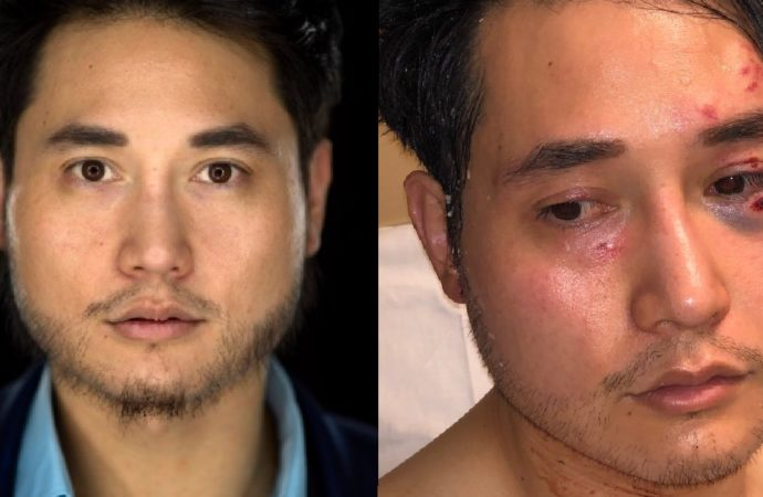 Quillette Editor Andy Ngo Assaulted by AntiFa and Taken to ER