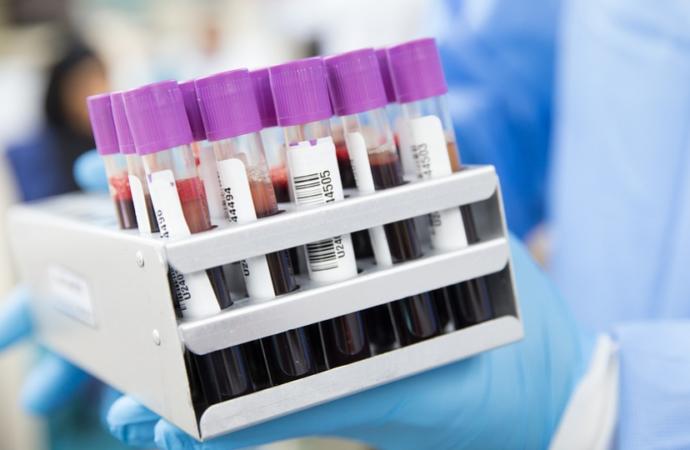 Fauci Says Antibody Treatment Is One Of Coronavirus Team's 'Top Priorities'